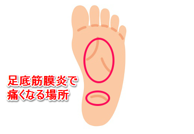 「足底筋膜炎」の画像検索結果