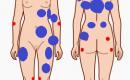 レディーガガもなった線維筋痛症、症状と対処法について